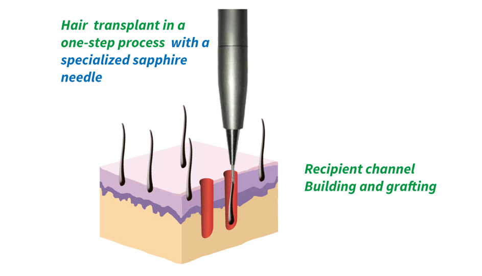 Sapphire FUE Hair Transplant