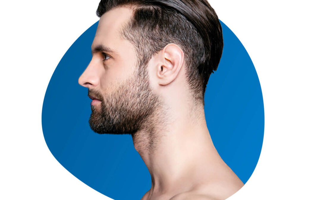 Beard Transplant: Issues How it works?