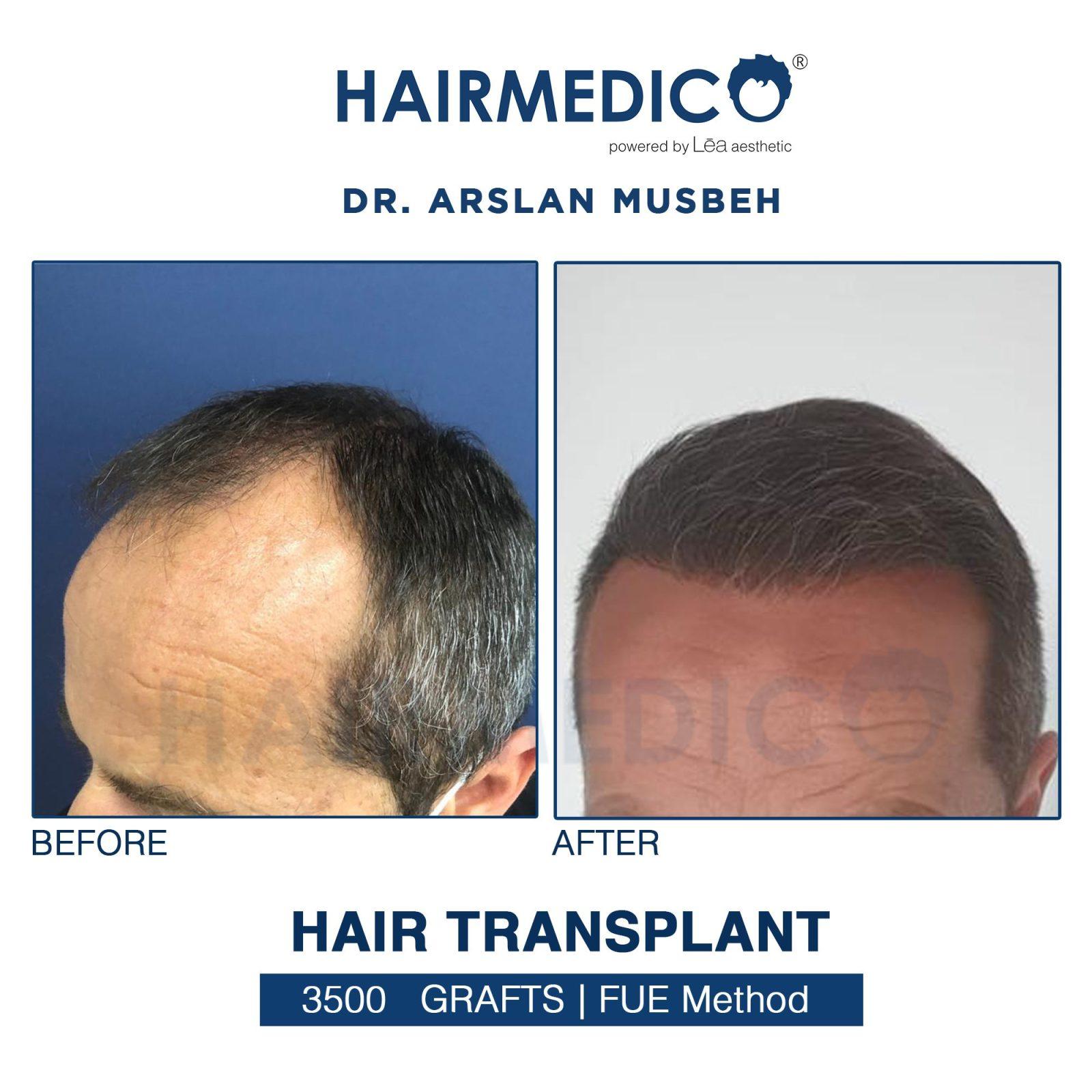 Photos avant et après greffe de cheveux