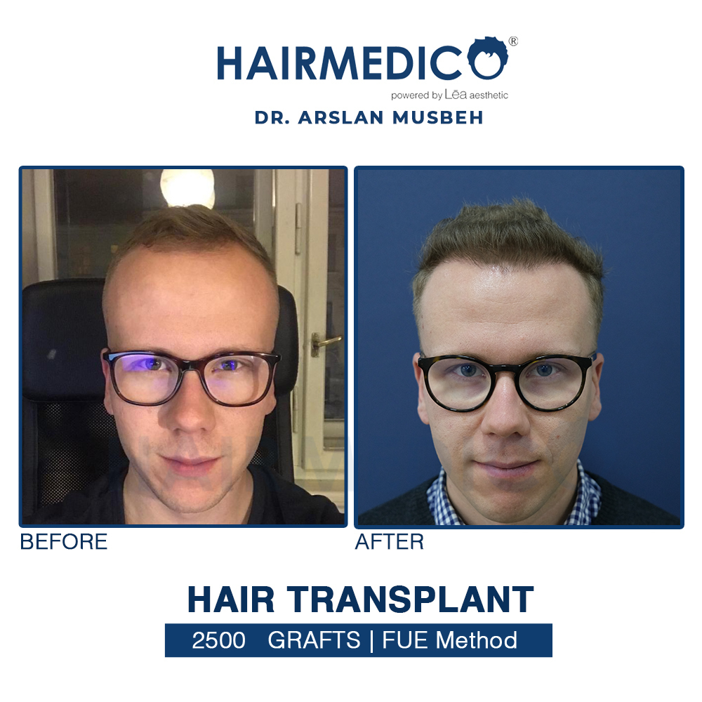 greffe due cheveux en Turquie .Photos avant et après greffe de cheveux