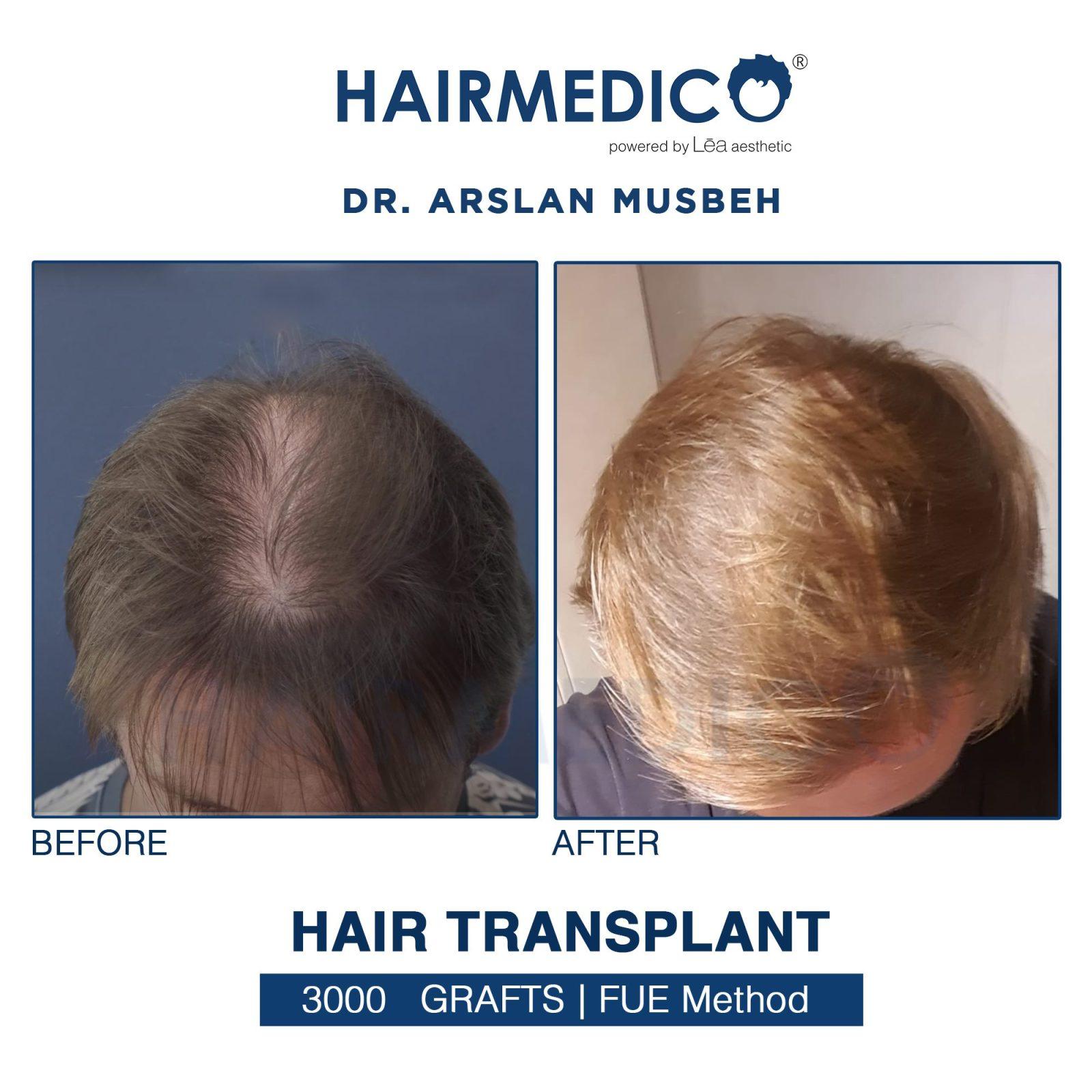 Hair Transplant in Turkey dr arslan