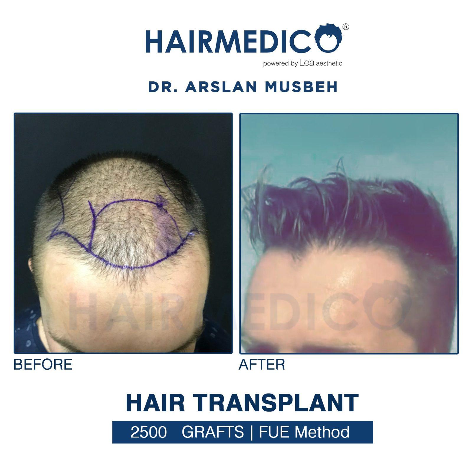 Hair Transplant in Turkey