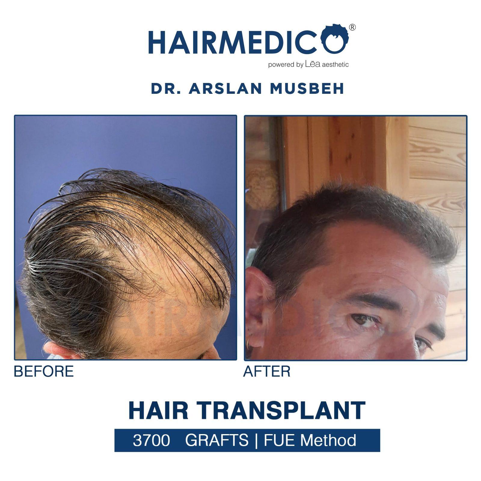 Hair Transplant dr arslan